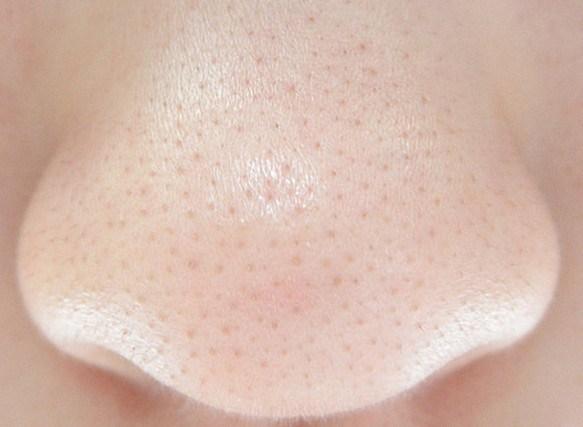 鼻の黒ずみ 解消